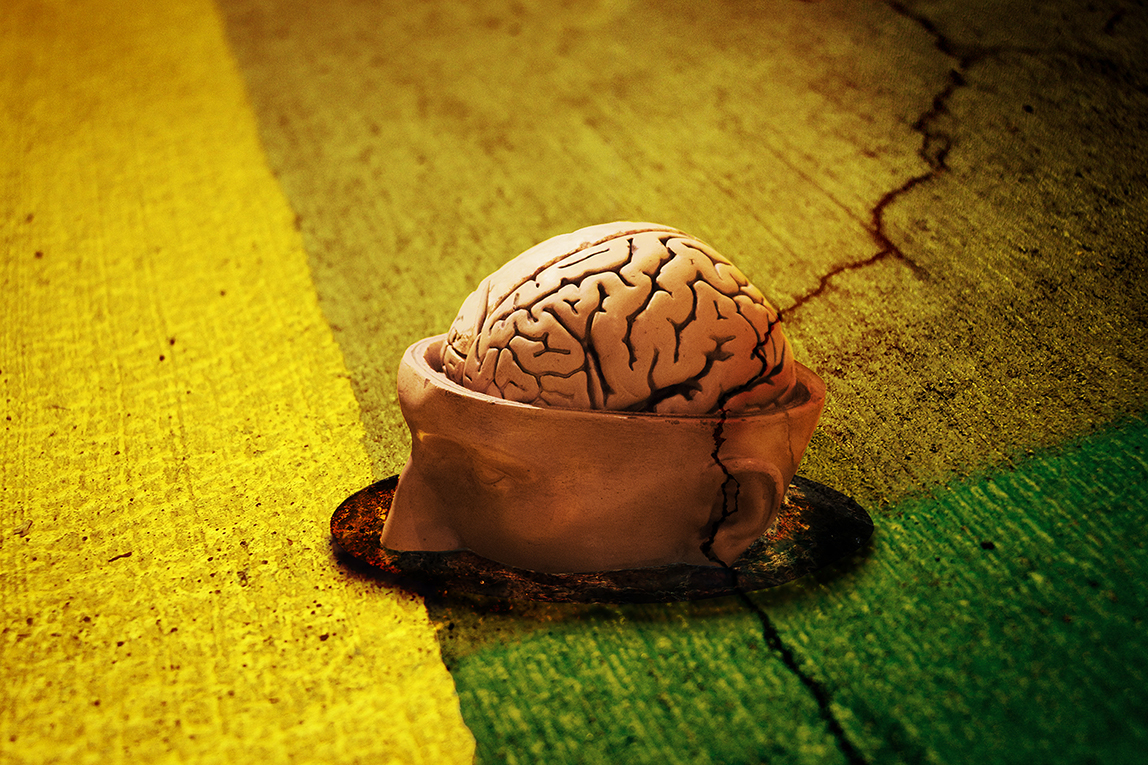 Brain-by-Hermann-Fuchs-fb958320906776274c49b967b9485544